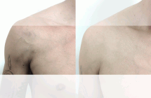 chest-veins-before-after
