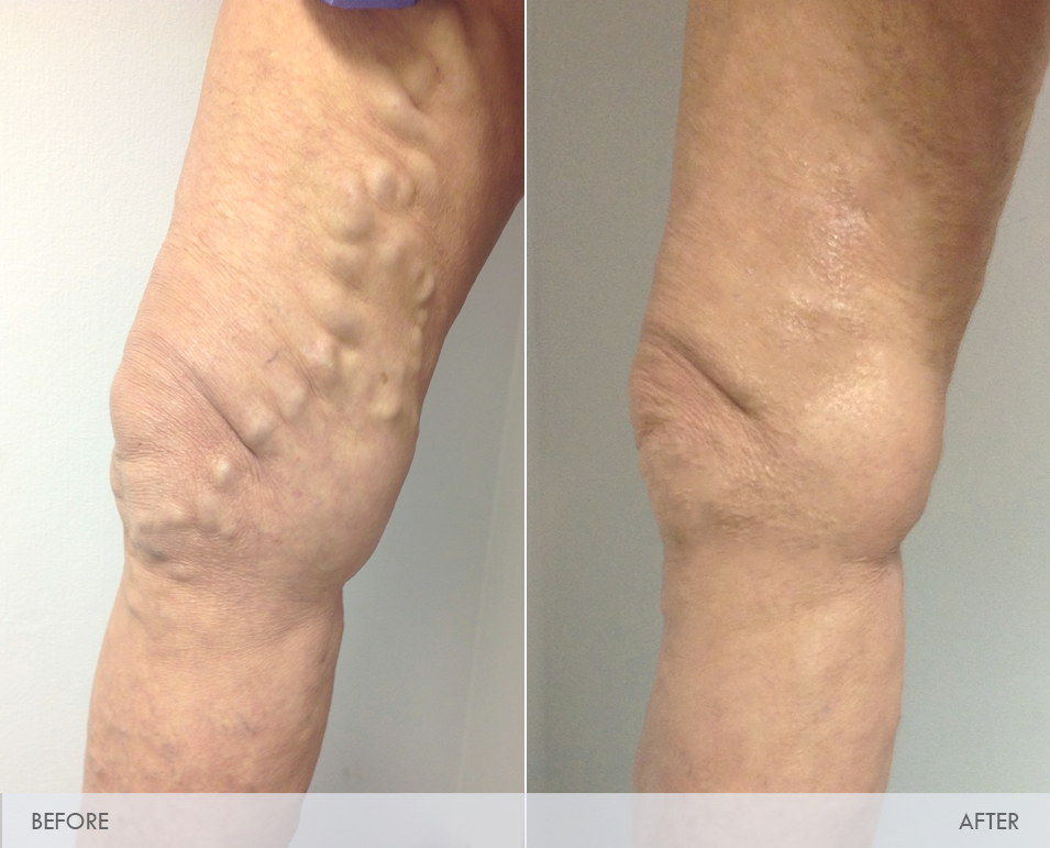 how to work with varicose veins