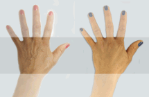 hand-before-after