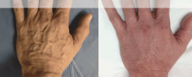 web-before-and-after-hand-veins