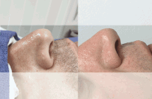 web-before-and-after-face-veins2
