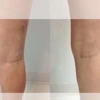 web-before-and-after-sclero-veins1