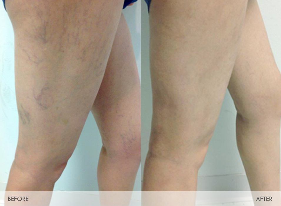 web-before-and-after-sclero-veins2
